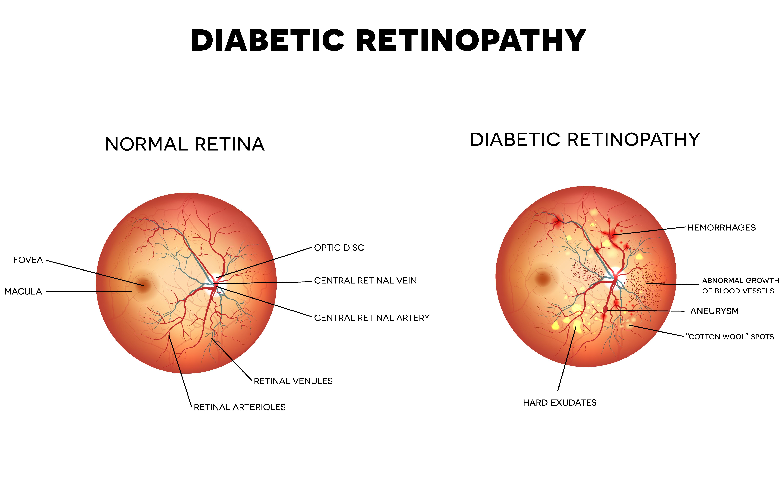 Diabetic Retinopathy Eye Health Central
